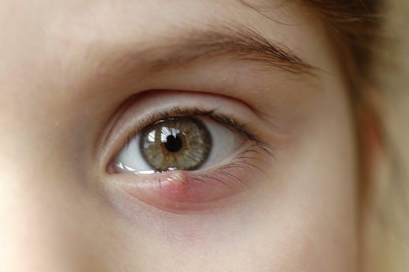 a szem alatt a vörös folt duzzadt és viszket)