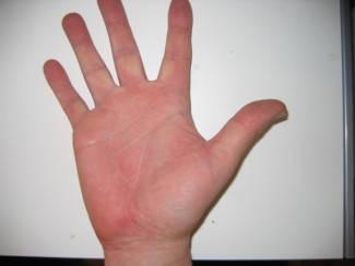 vörös foltok a tenyéren és a kezeken)