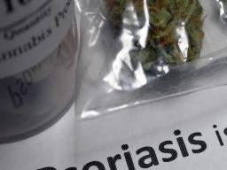 lead psoriasis kezelése)