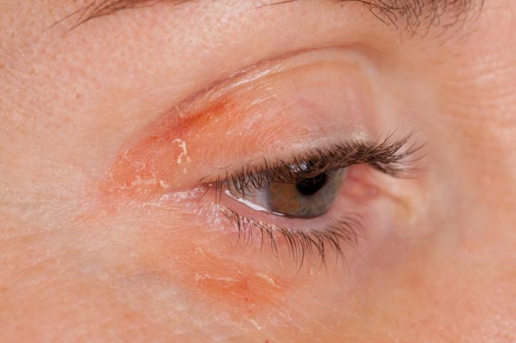 vörös pikkelyes foltok a szem körüli arcon)
