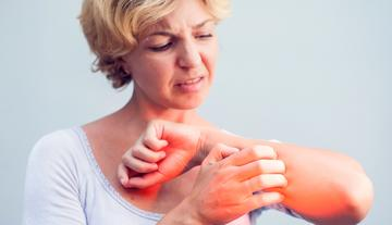 a kezeket és a lábakat vörös foltok és viszketés borítják)