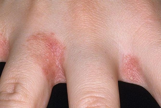 az ujjak ízületein vörös foltok viszketnek)