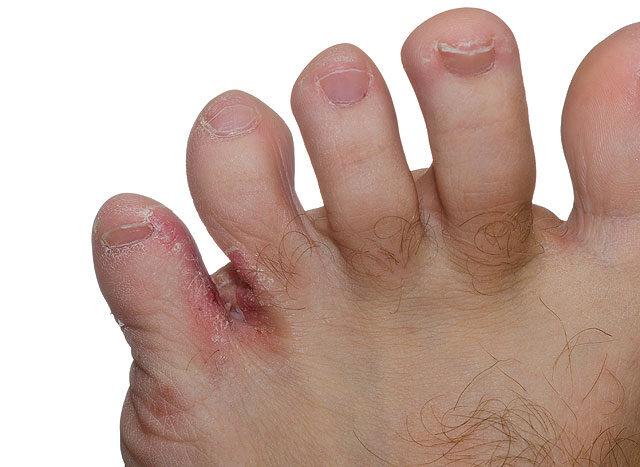 vörös foltok a lábujjakon)