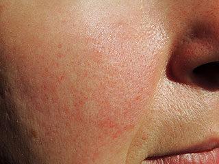 az arc duzzadt és vörös foltok vannak a testen)