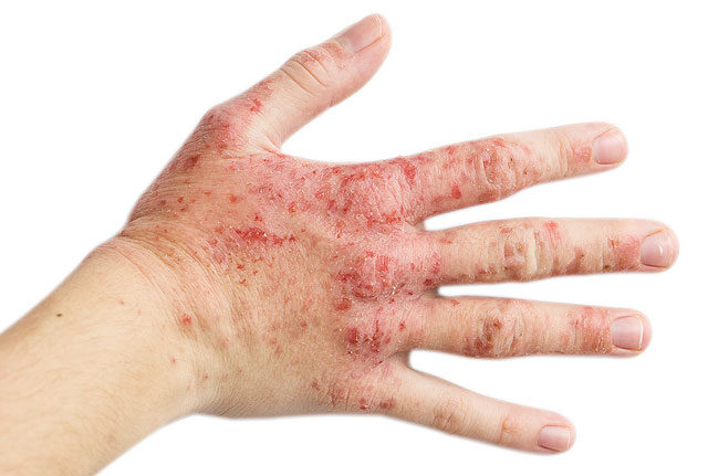 vörös foltok a rüh kezén