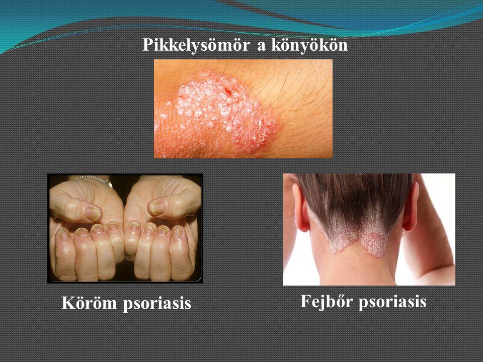pikkelysömör a könyökön a kezelés kezdeti szakasza az egész arcát apró vörös foltok borítják