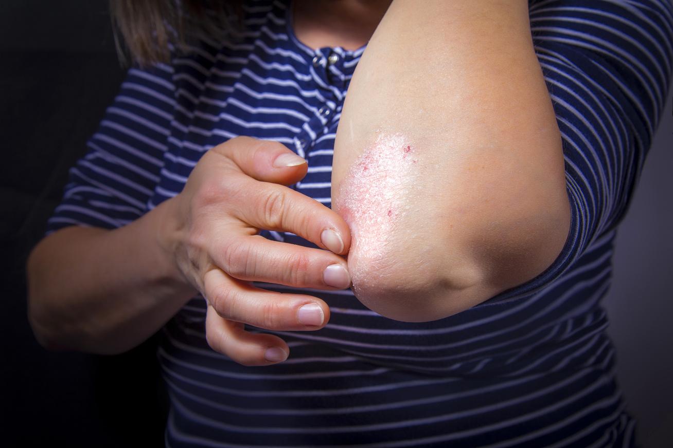 Miért reped a bőr az ujjain