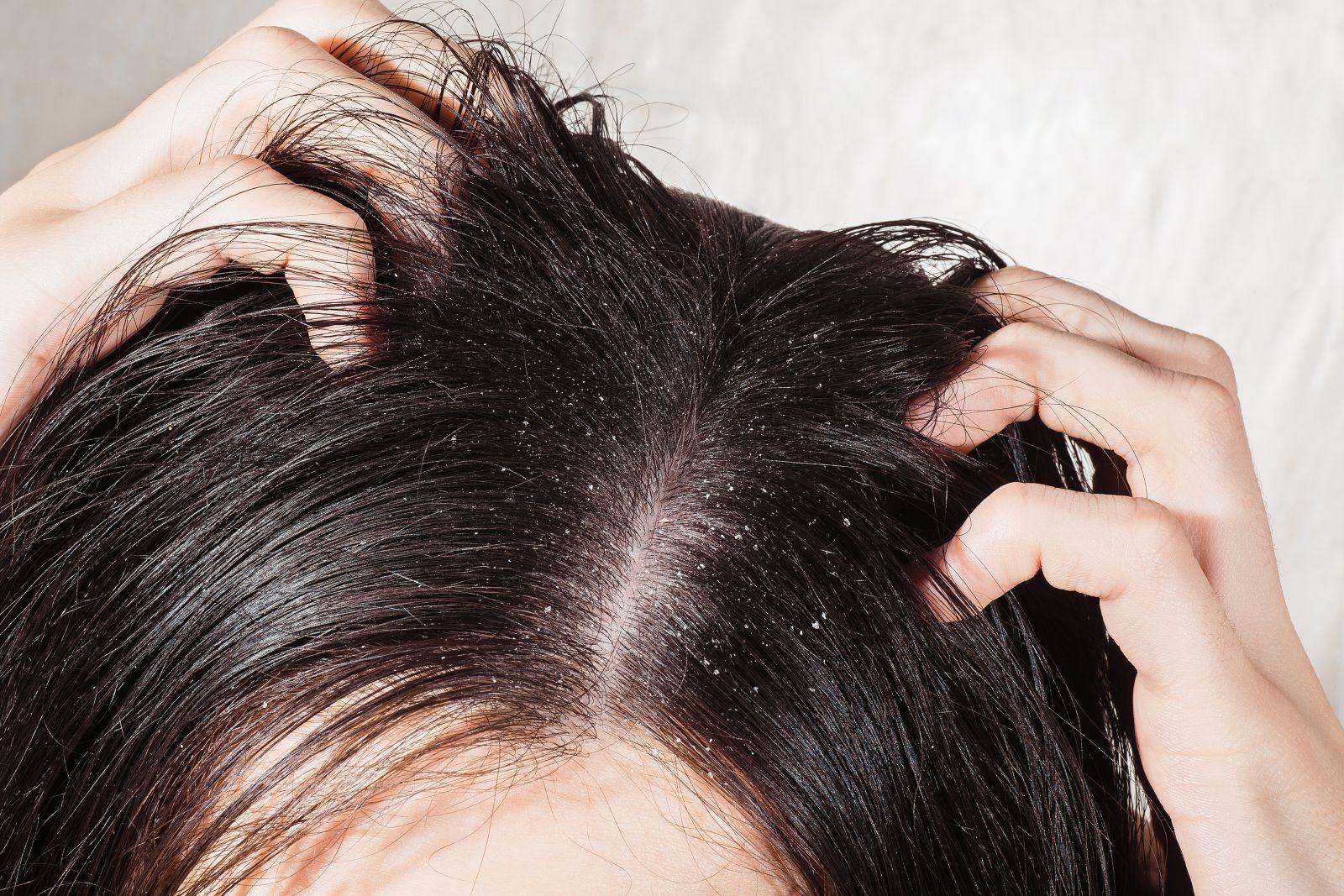 vörös foltok és korpásodás jelennek meg a fejbőrön)