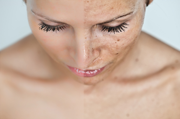 az arc bőrén vörös foltok viszketés kezelés fotó)