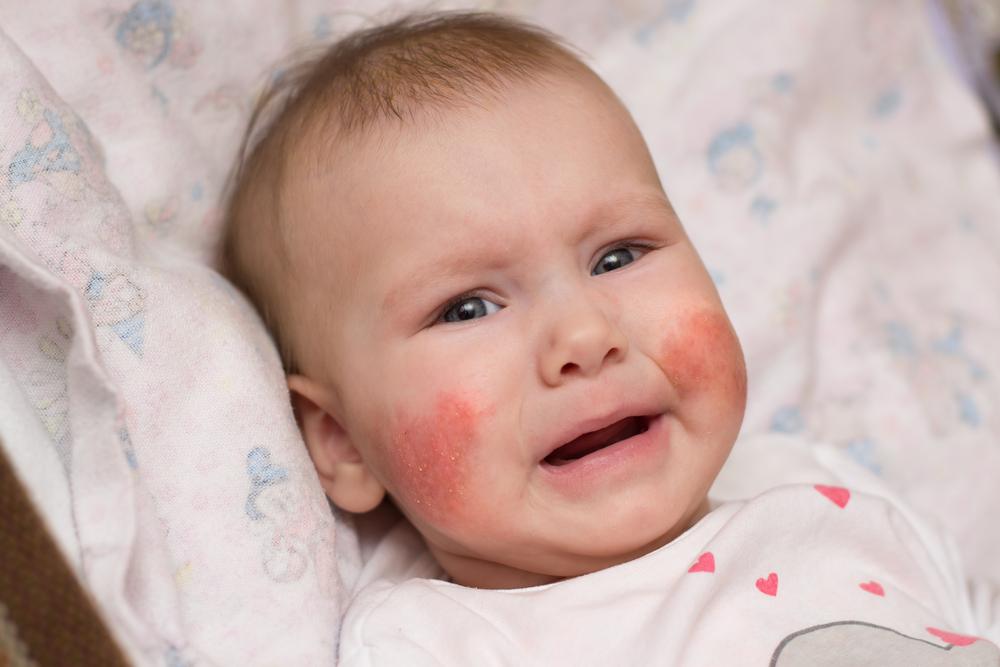 fájdalmas vörös folt a fejbőrön az arc hideg vörös foltjaitól