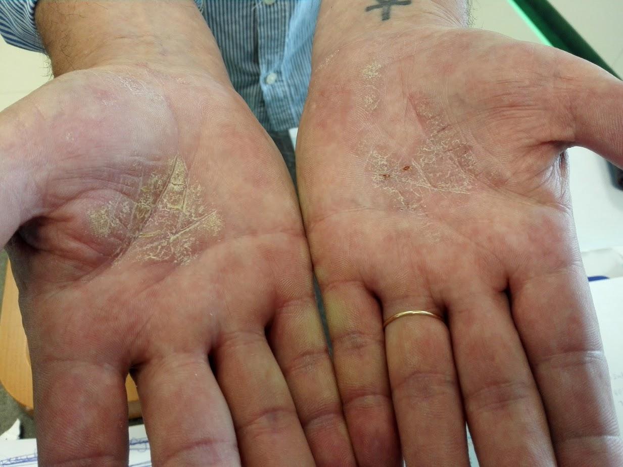 krém D-vitaminnal a pikkelysömör véleményekből piros foltok a kezek fényképen