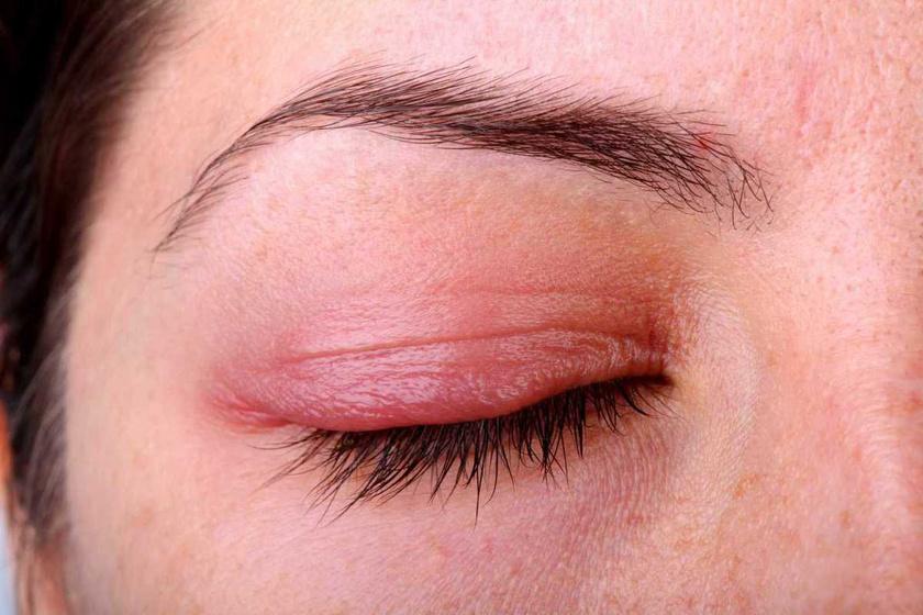 a szem alatt vörös folt hámlik le és duzzad)