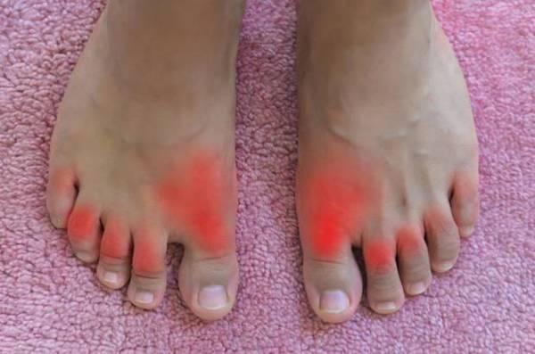 vörös foltok a lábak között nőknél)