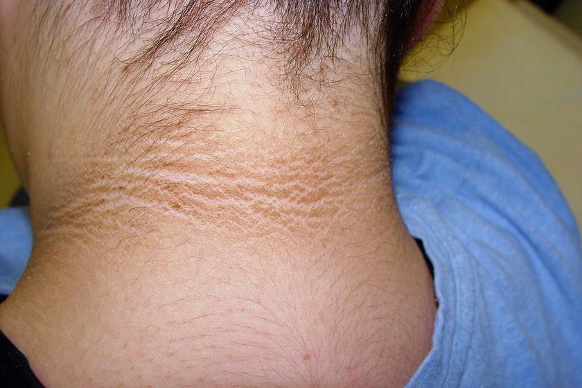 vörös folt a nyak bőrén)