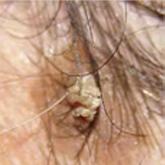 a fejbőrön lévő vörös foltok okai