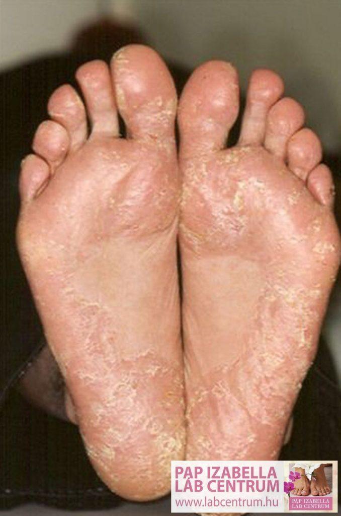 a lábak pikkelysömörének otthoni kezelése