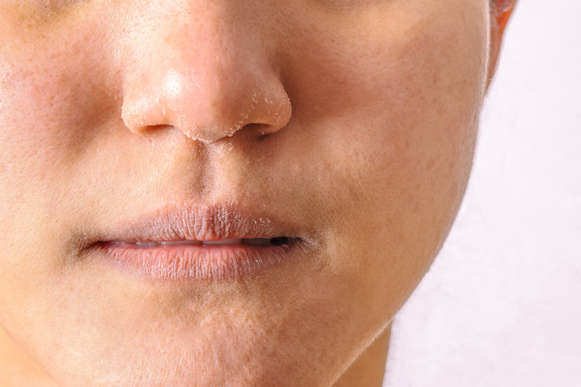 száraz bőr az arcon vörös foltokkal