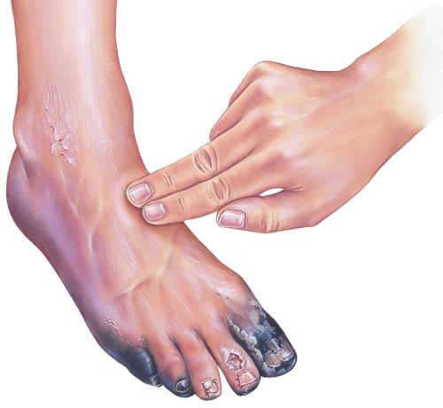 kenderolaj pikkelysömör kezelése egyik lábán fájdalmas vörös foltok