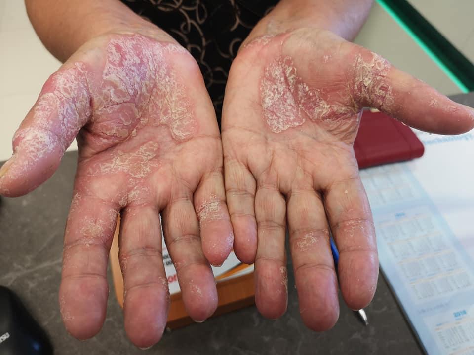 piros érdes foltok a kezek fényképen)
