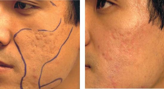 egy nyers étel diéta gyógyította pikkelysömör nemi úton terjedő betegségek vörös foltok az arcon