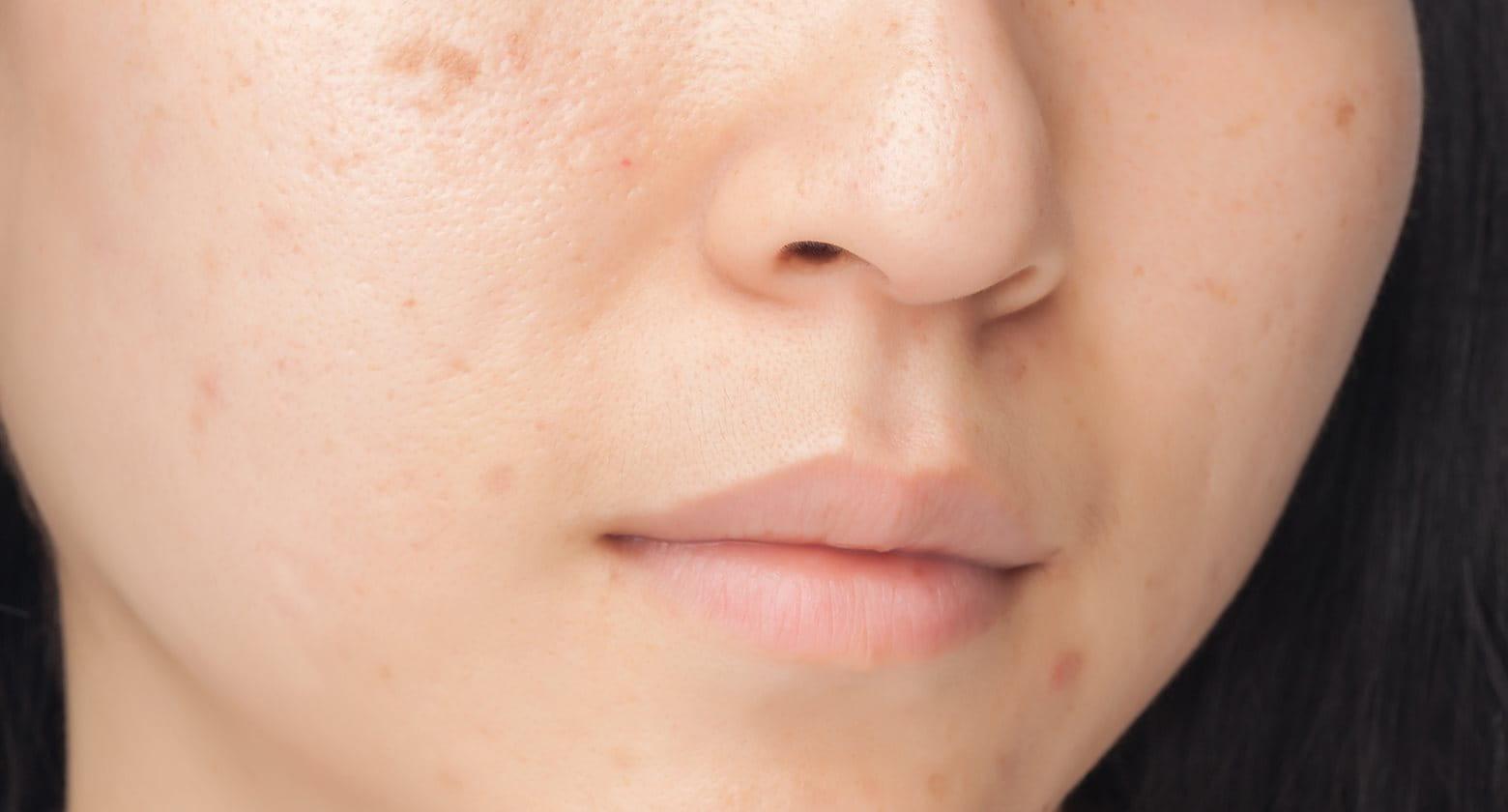 hogyan lehet eltávolítani a vörös foltokat és hegeket az arcon)
