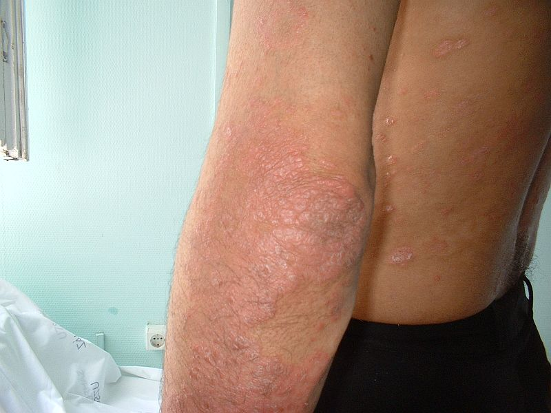pikkelysömör a könyökön a kezelés kezdeti szakasza vörös foltok ömlöttek a bőrön