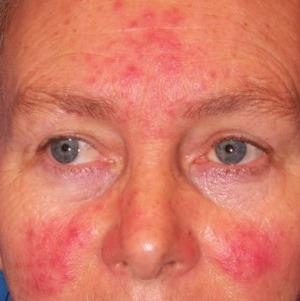 pikkelysömör kezelése az arcon és a fején otthon kenőcs pikkelysömörre harraz