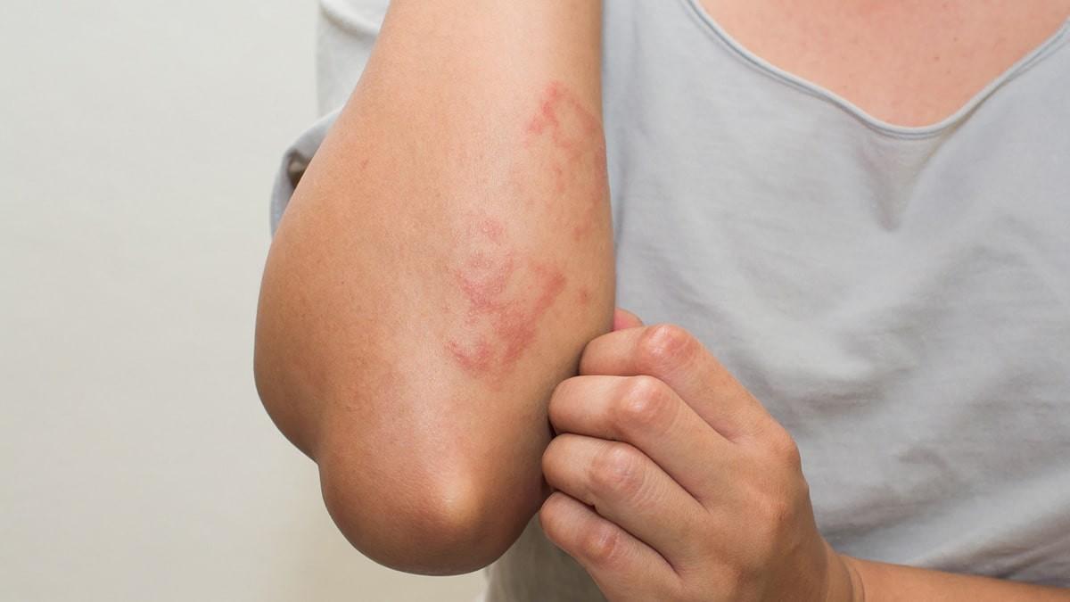 bőrkiütés vörös foltok formájában az egész testen