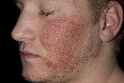 vörös durva folt az arcon felnőtteknél