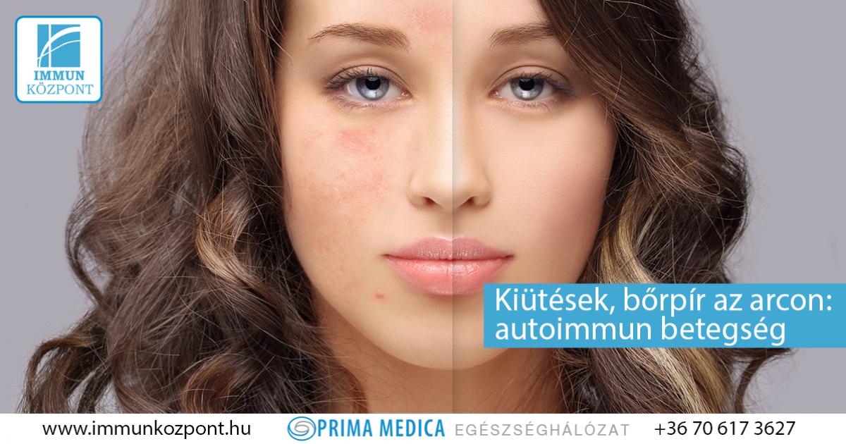 piros folt jelent meg az arcon mi ez cukorbetegség pikkelysömörének kezelése