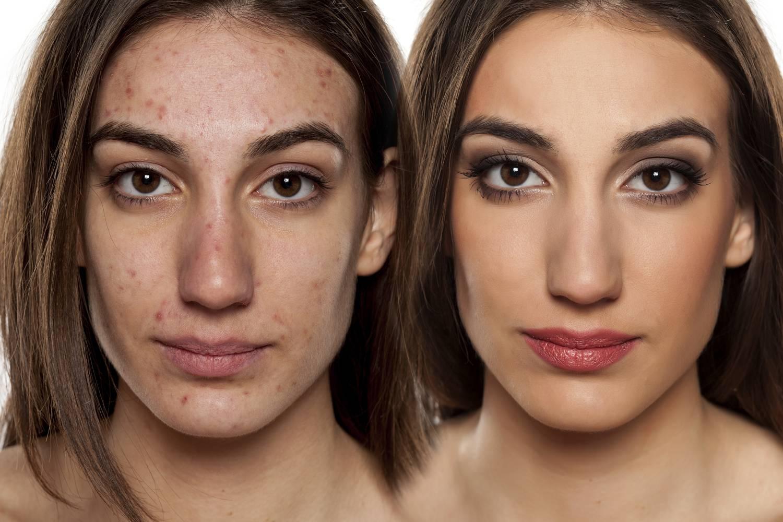 az arcbőr és a vörös foltok súlyos hámlása)