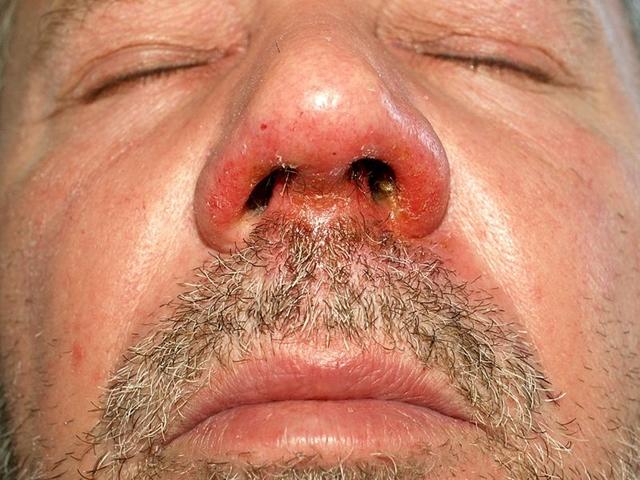 hányás után miért jelennek meg vörös foltok az arcon)