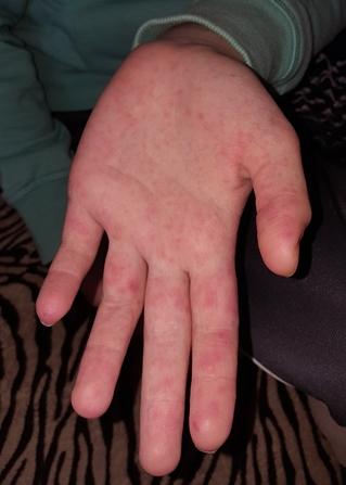 piros foltok a kezen hogyan kell kezelni