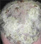 vörös foltok és korpásodás jelennek meg a fejbőrön