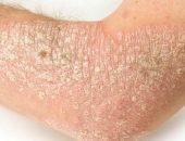 hogyan lehet enyhíteni a pikkelysömör tüneteit