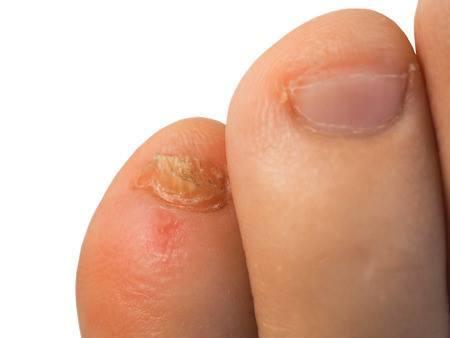 Spain psoriasis kezelése pikkelysömör a lábakon fotókezelés