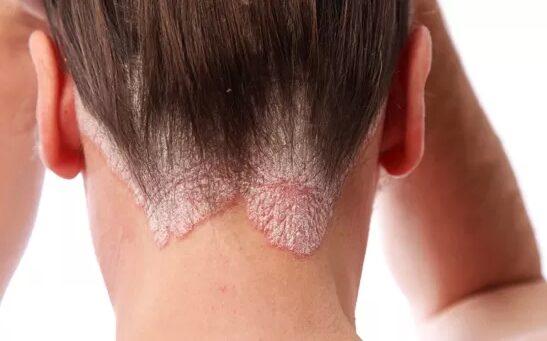 bőrkiütés vörös foltok formájában felnőtteknél a gyógyszeres kezelés miatt vörös foltok a fején viszket fénykép