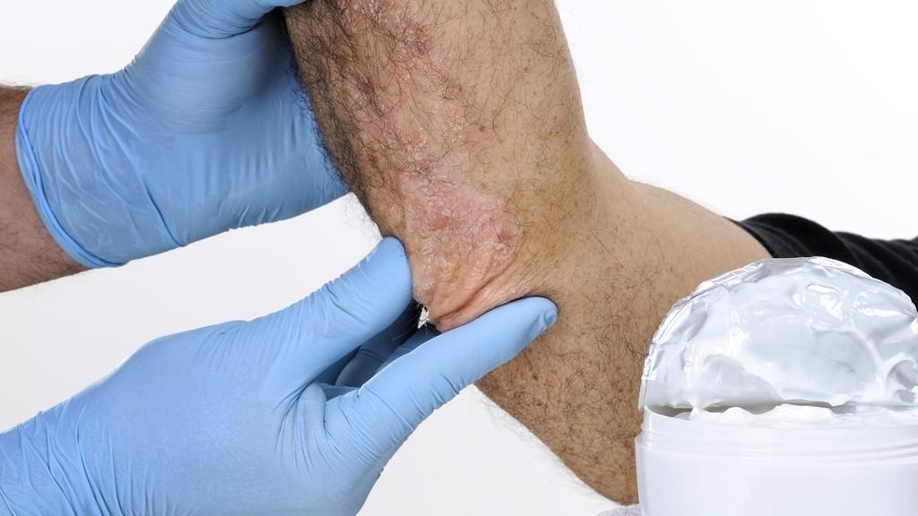 vörös foltok a lábakon és sötétek a bőr alatt Jordan pikkelysömör kezelése