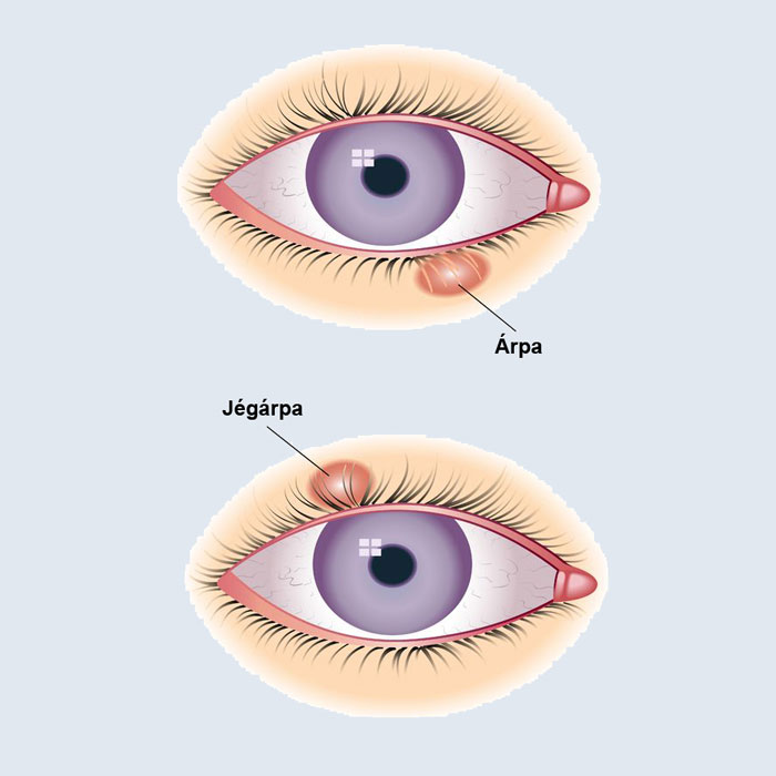 hogyan lehet eltávolítani egy vörös foltot a szemről)