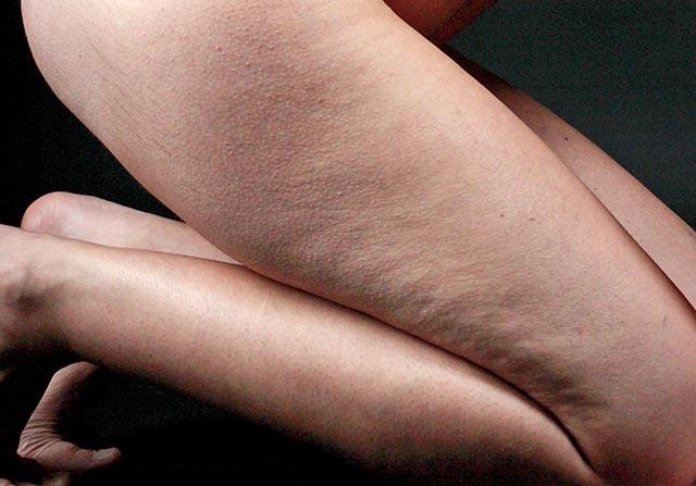 pikkelysömör ujjakon fotókezelés pikkelysömör kezelése udalyanchi