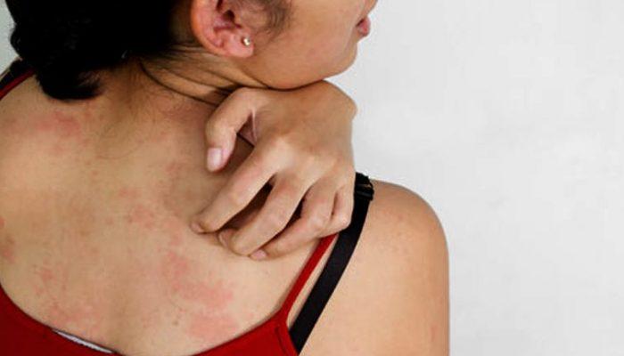 vörös testfoltok a testen okokat és kezelést