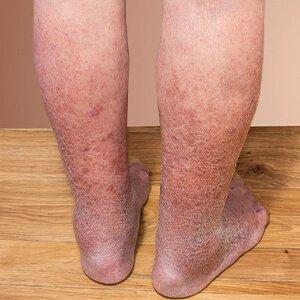 vörös folt a lábon visszér vörös pöttyös folt a bőrön