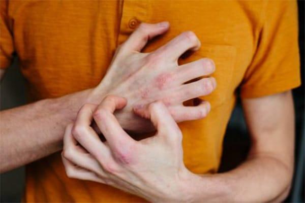 könnycsepp pikkelysömör kezelése népi gyógymódokkal a fejbőrön lévő vörös foltok okai