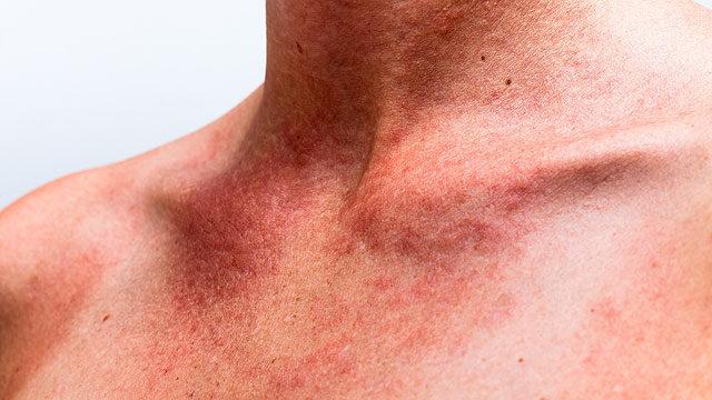 vörös foltok a nyak és a mellkas bőrén)