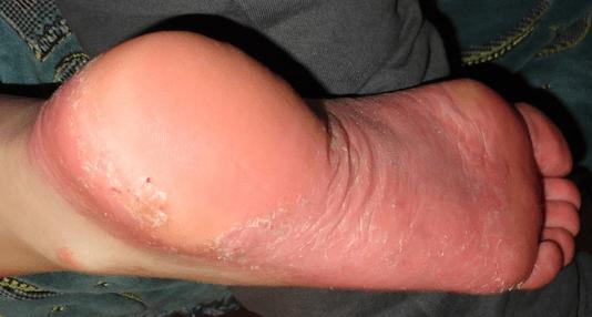 a lábak között vörös foltok, mint kezelni