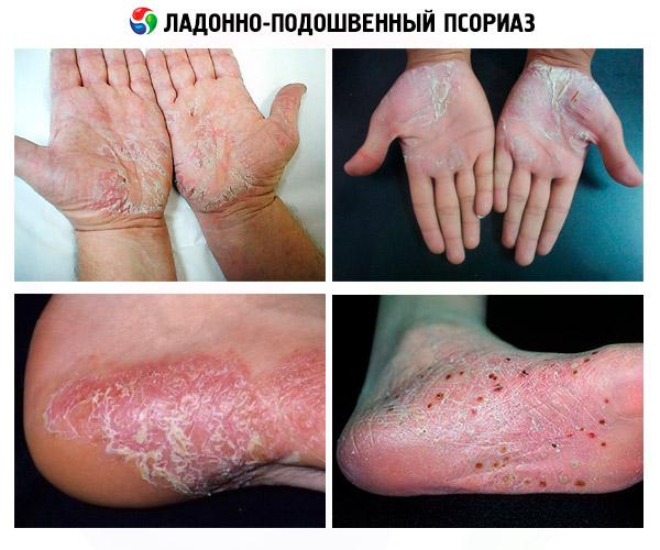 gránátalma pikkelysömör kezelése vörös folt jelent meg az ajak viszketésén