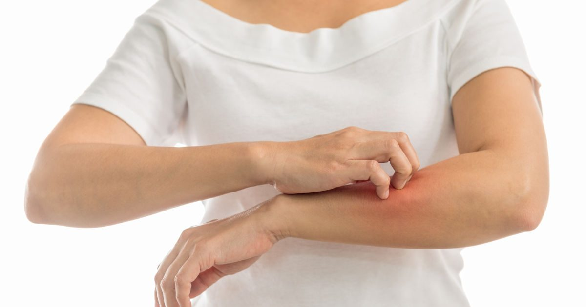 Vörös foltok borítanak a karomra és a lábamra