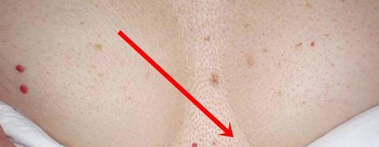 piros folt pontokkal a lábán)