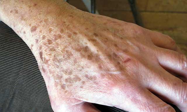 pikkelysömör ujjakon fotókezelés a bőrön lévő foltok vörösek a kezeken
