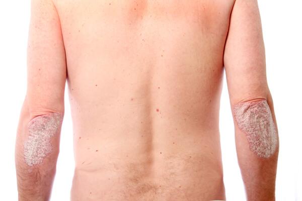 kézi bőr kezelése pikkelysömörhöz)